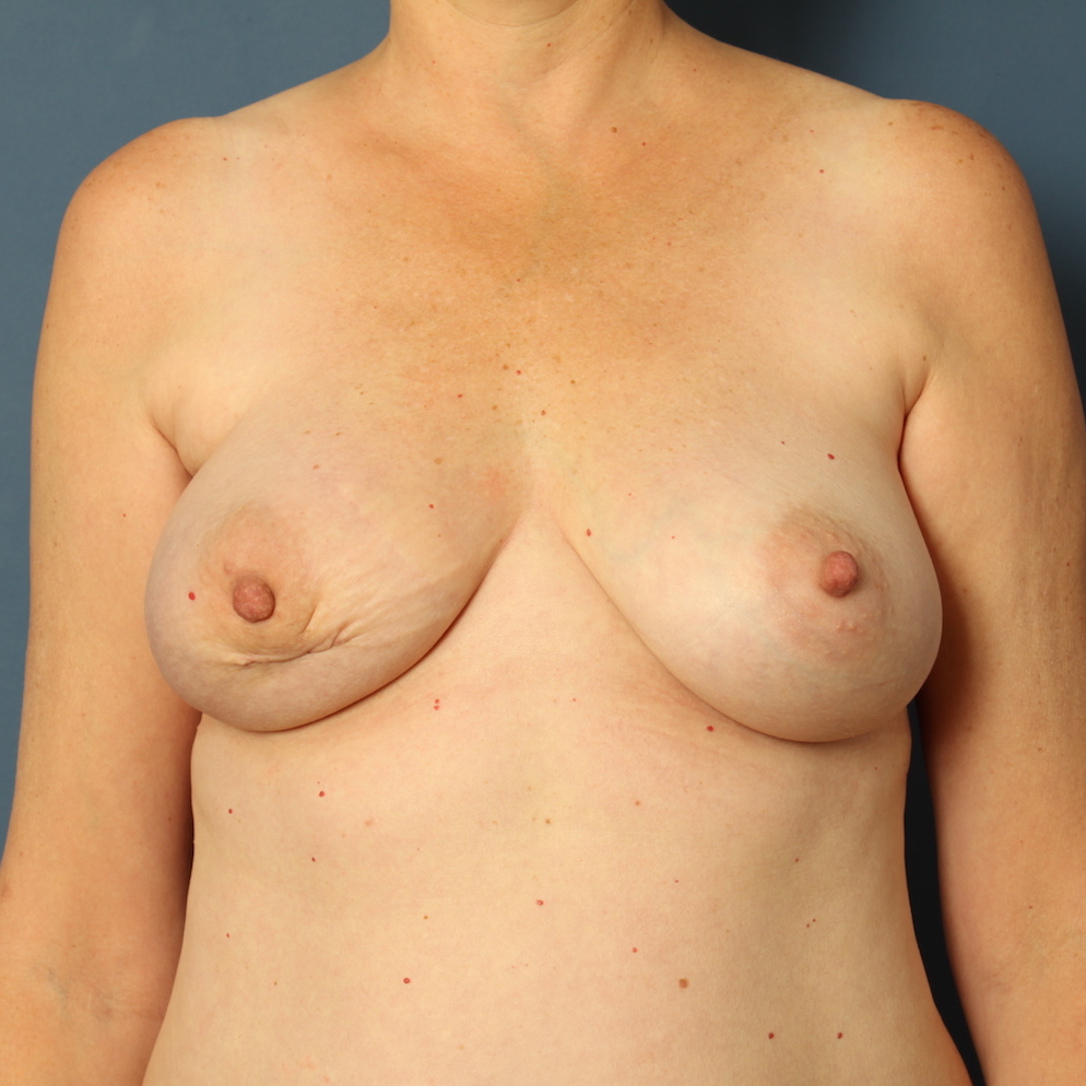 Patient 421 Before - Breast Cancer Texas