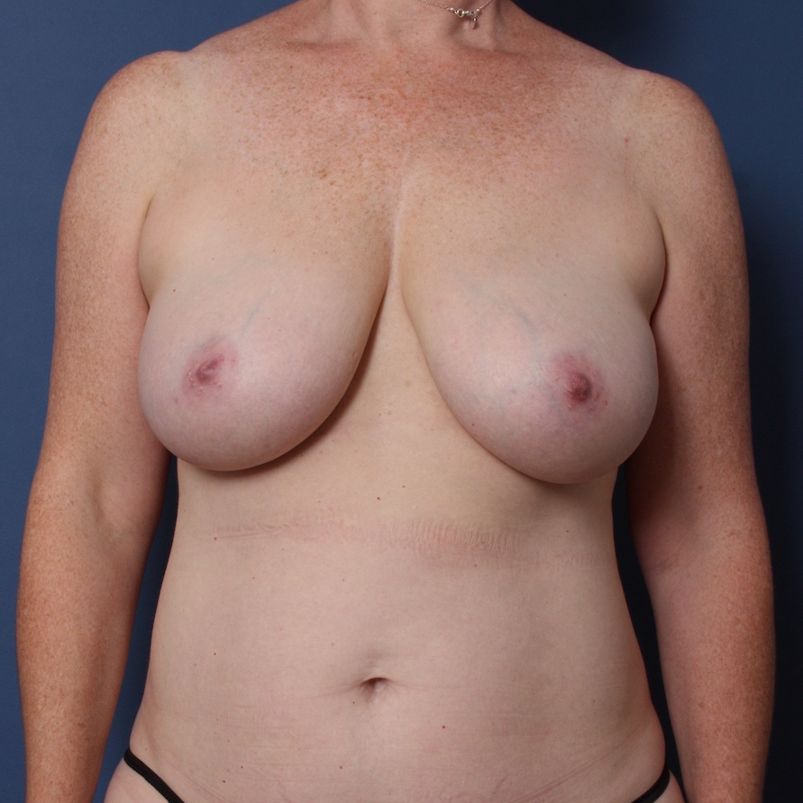 Patient 572 Before Overview - Sidebar - DIEP Flap Surgery - Breast Cancer Texas