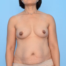 Patient 243 Before Overview - Sidebar - Nipple Sparing Mastectomy DIEP Flap Surgery - Breast Cancer Texas